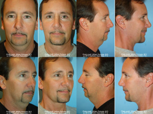 Eyelid-surgery-portland